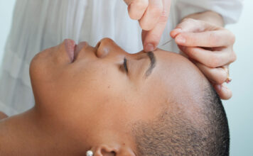 Overcoming First-Time Acupuncture Fears | Goop